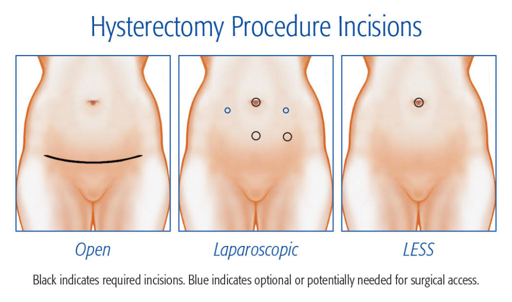 Hysterctomy procedure incision